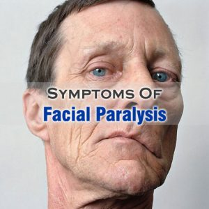 Facial Paralysis Symptoms