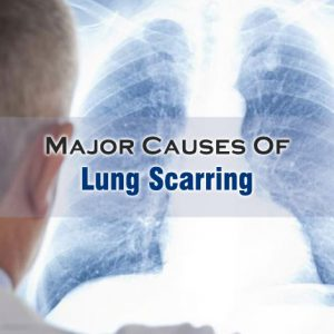 Lung Scarring Causes