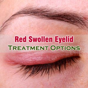 Red Swollen Eyelid Treatment