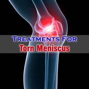 Treatment For Torn Meniscus