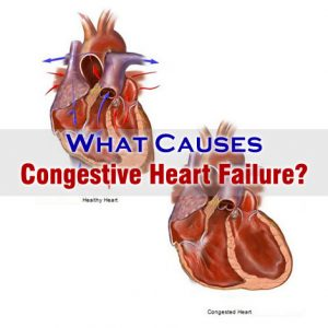 What Causes Congestive Heart Failure