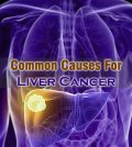 Causes For Liver Cancer