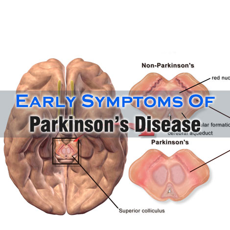 the early signs and symptoms of parkinsons disease