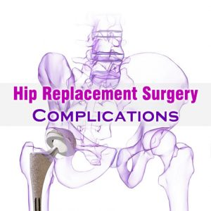Hip Replacement Surgery Complications