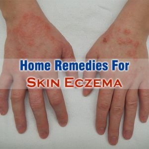 Home Remedies For Skin Eczema
