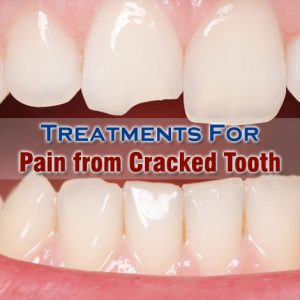 Pain From Cracked Tooth