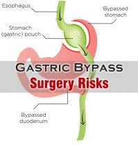 Gastric Bypass Surgery Risks