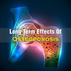 Long Term Effects Of Osteoporosis