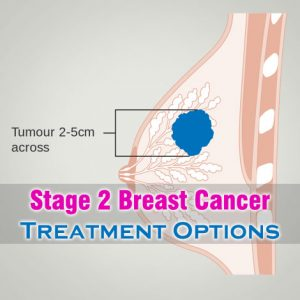 Stage 2 Breast Cancer Treatment Options