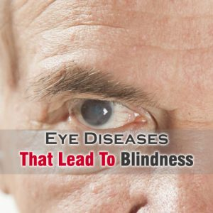 Eye Diseases That Lead To Blindness