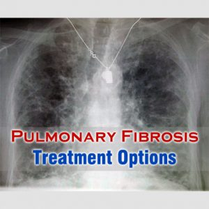 Pulmonary Fibrosis Treatment Options
