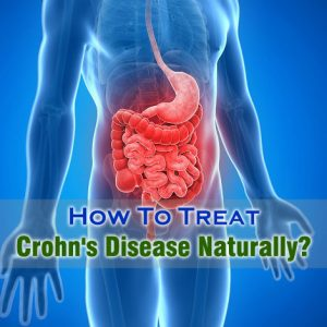 How To Treat Crohn's Disease Naturally