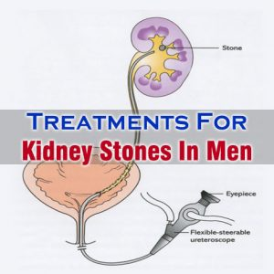 Kidney Stones In Men Treatment
